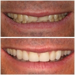 porcelain and composite veneers number one-3
