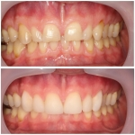 porcelain and composite veneers number two-3